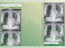 Aplicativo criado na USP faz diagnóstico da covid-19 a partir de radiografia do pulmão
