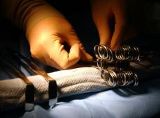 Esterilização forçada nos EUA: Práticas misóginas retornam onde estavam superadas